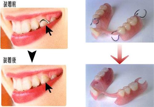 入れ歯の種類と費用